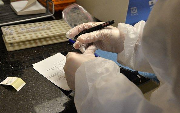 MS tem 300 notificações, 70 suspeitas e 21 casos confirmados de coronavírus